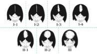 hair loss photo